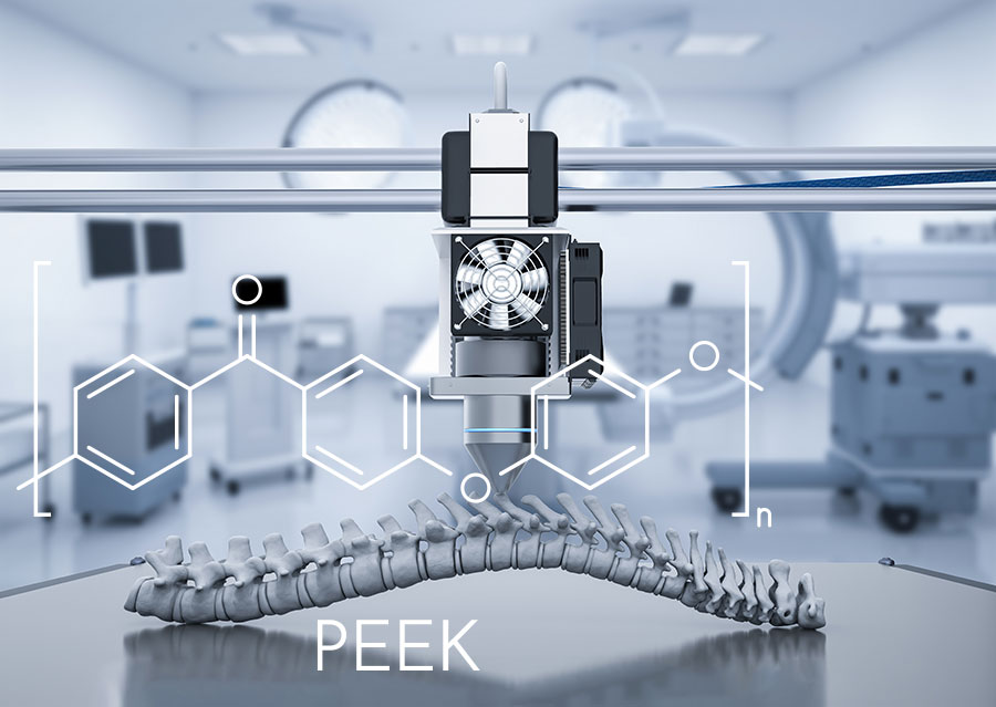 Plasma Treatment of PEEK for Biomedical Applications